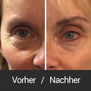 Permanent Make Up Bruchsal Region Karlsruhe Augenbrauen für Frauen